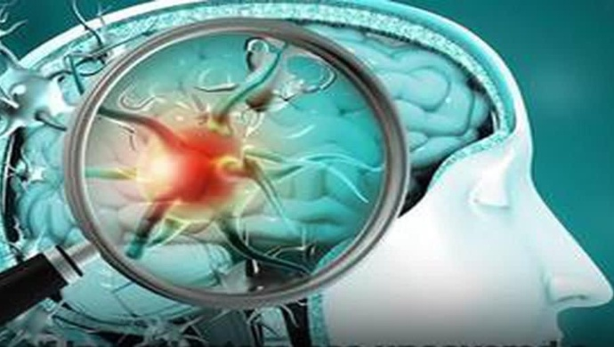 US Researchers Discover New Strategy To Treat Brain Cancer Patients