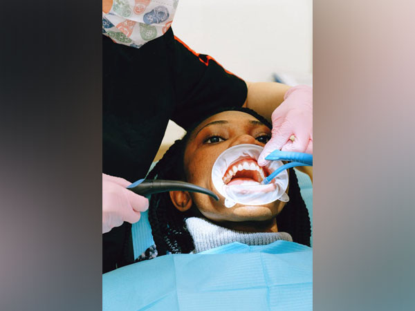 The study claims that good dental health can help prevent heart infection with bacteria in the mouth